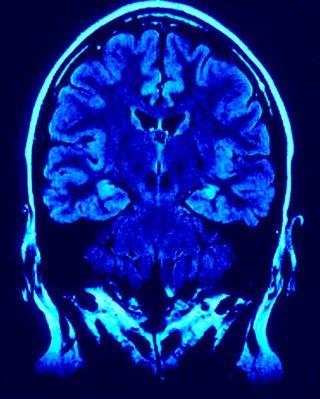 Brain01